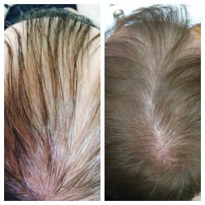 фото головы с андрогенетической алопецией у мужчины