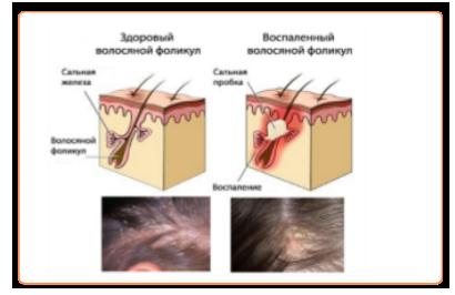 себорейный дерматит схема