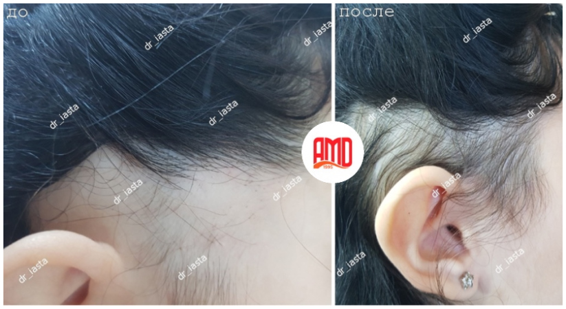 фото до и после 4